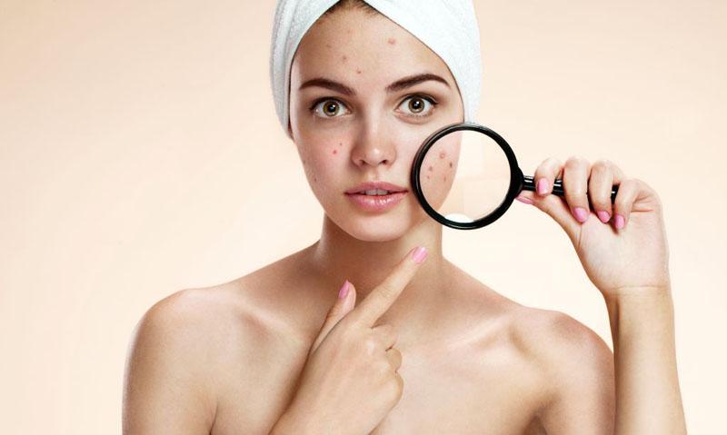 Melhores produtos para pele com acne