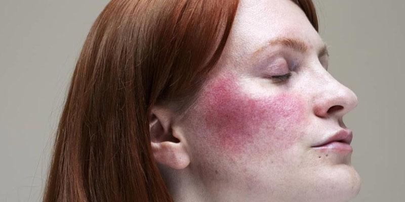 Melhores produtos para pele com rosácea