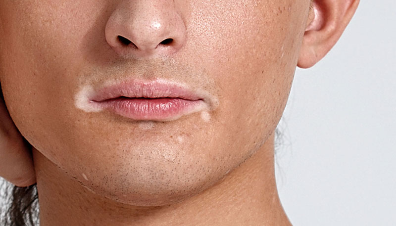 Melhores produtos para pele com vitiligo