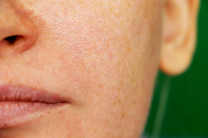 Melhores produtos para remover manchas na pele